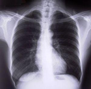 chest-xray1-262068-m.jpg
