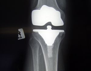 knee-replacement---front-view-1183623-m.jpg